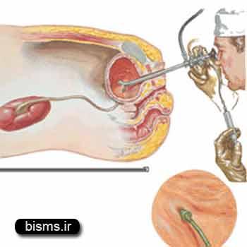 التهاب مثانه،درمان التهاب مثانه