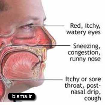 پولیپ بینی،درمان پولیپ بینی,پولیپ بینی چیست