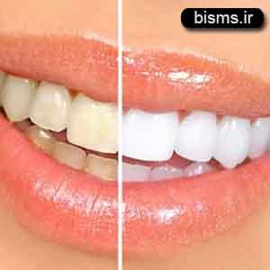 بد رنگ شدن دندان ها,زرد شدن دندان