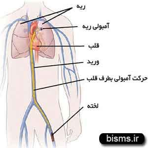 آمبولی ریه چیست