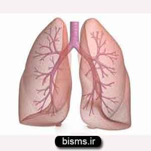 آمبولی ریه,درمان آمبولی ریه