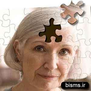 آلزایمر,درمان آلزایمر