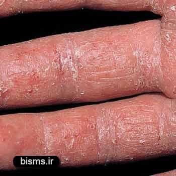 اگزما،درمان اگزما,بیماری اگزما چیست