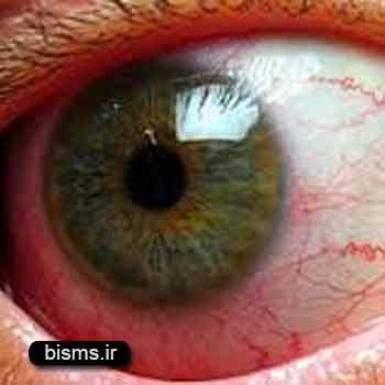 التهاب عنبیه،درمان التهاب عنبیه،علل التهاب عنبیه