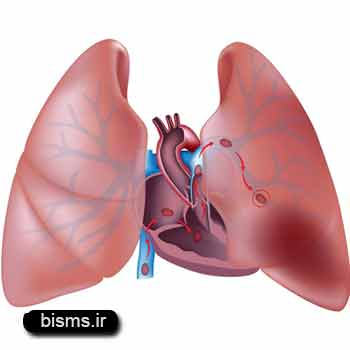 آمبولی ريه،درمان آمبولی ريه,آمبولی ریه چیست
