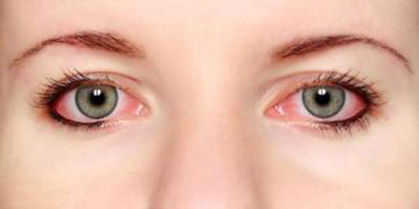 التهاب چشم , التهاب چشم نوزاد , التهاب چشم چیست؟ , التهاب چشمی چیست