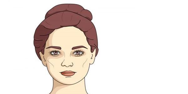 التهاب صورت , التهاب صورت بعد از اصلاح , التهاب صورت بعد از وکس , التهاب صورت نوزاد