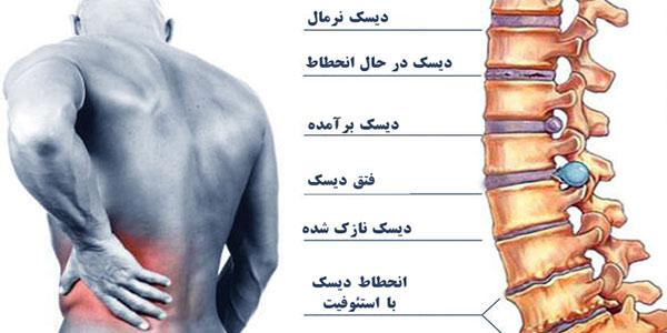 التهاب دیسک کمر , علایم التهاب دیسک کمر , علائم التهاب دیسک کمر , کاهش التهاب دیسک کمر