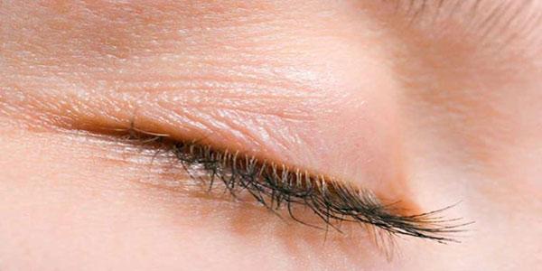 التهاب پلک , التهاب پلک چشم , التهاب پلک بالای چشم , التهاب پلک پایین چشم