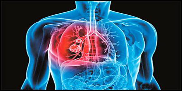 التهاب ریه , التهاب ریه چیست , التهاب ریه سیگار , التهاب ریه ها
